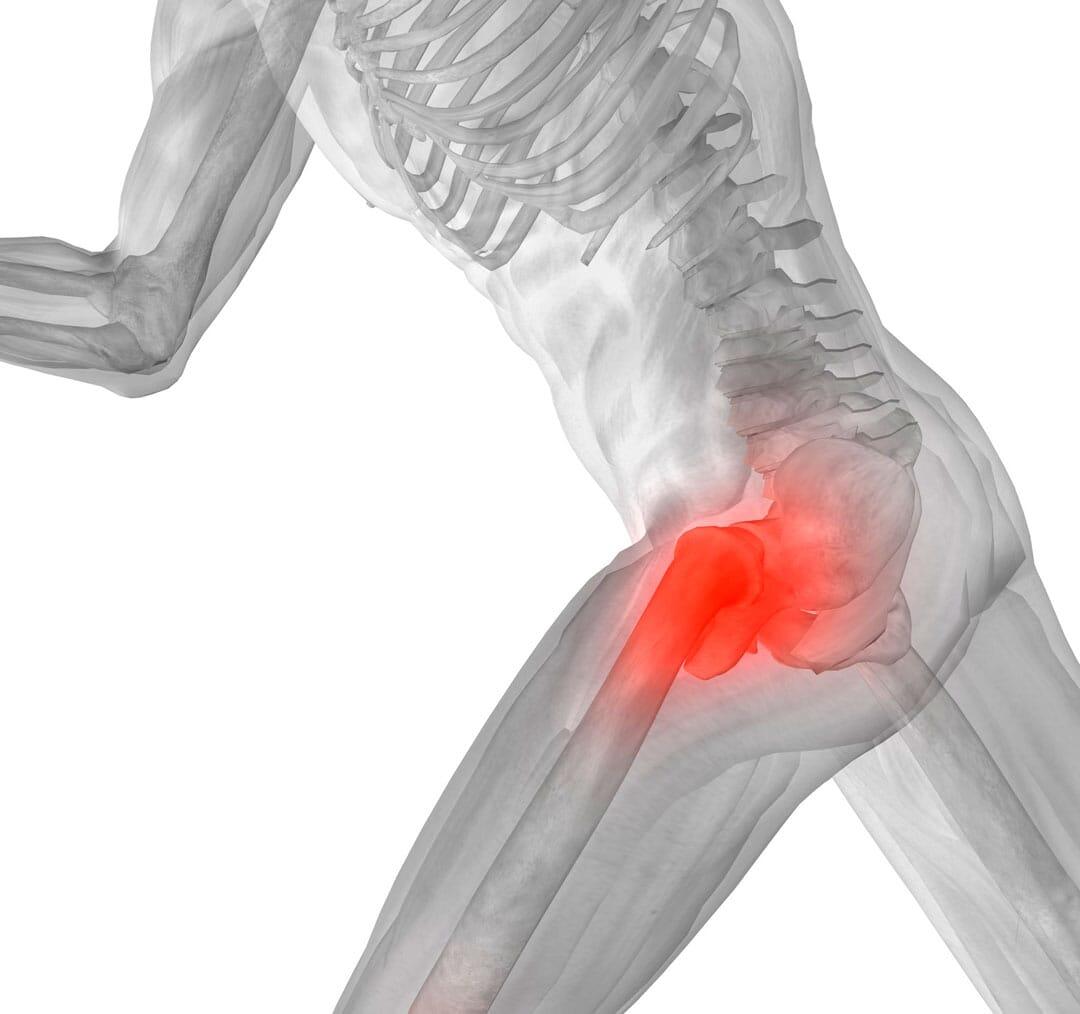 ¿Qué es un Pinzamiento Fémoroacetabular (pinzamiento de cadera) ?
